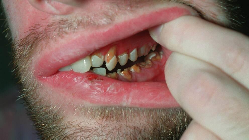 cum arată condilomul pe buzele mici