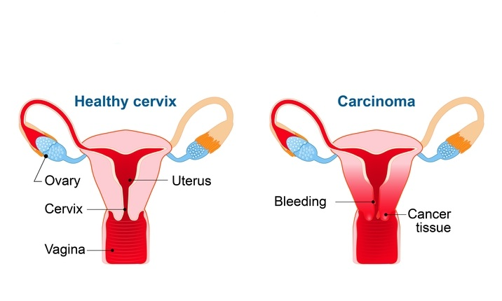 can hpv cause bladder pain