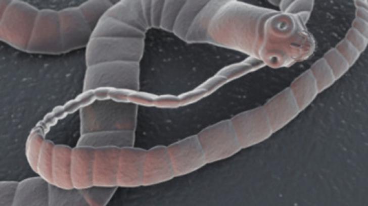 Viermișori. Află Cum Poţi Scăpa De Paraziții Intestinali | Libertatea