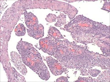 papilloma of the bladder păsări de copil infectate cu paraziți