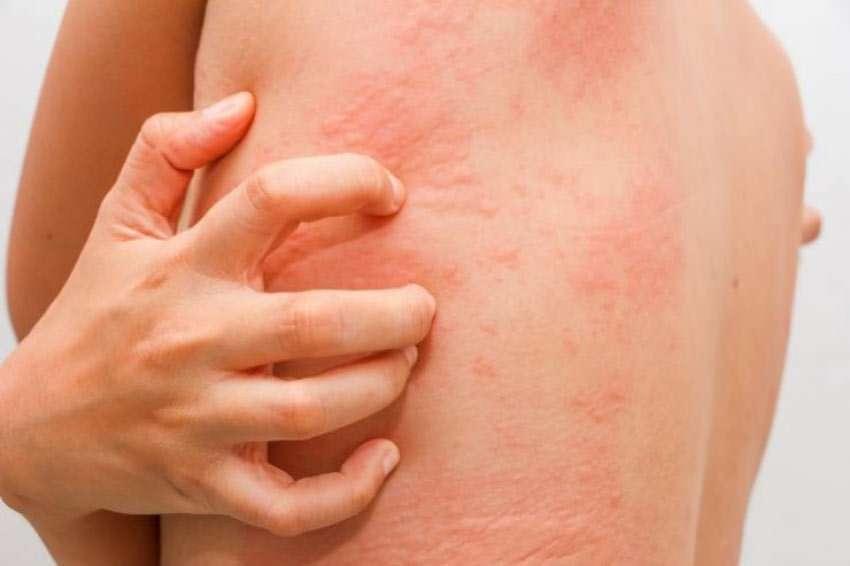 hpv impfung hautausschlag