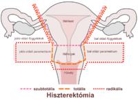 ovarian cancer jelentese)