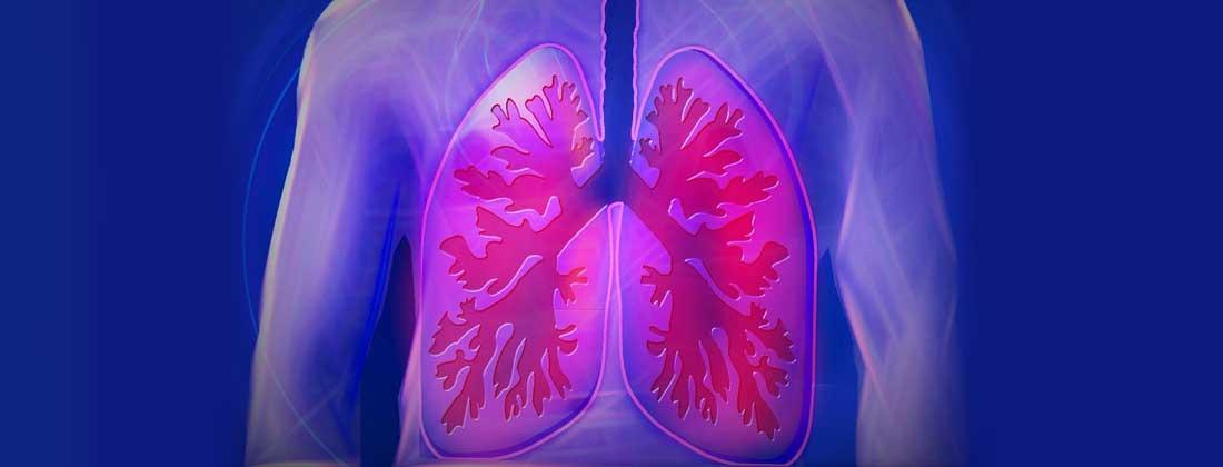 cancer plamani stadiul 2)