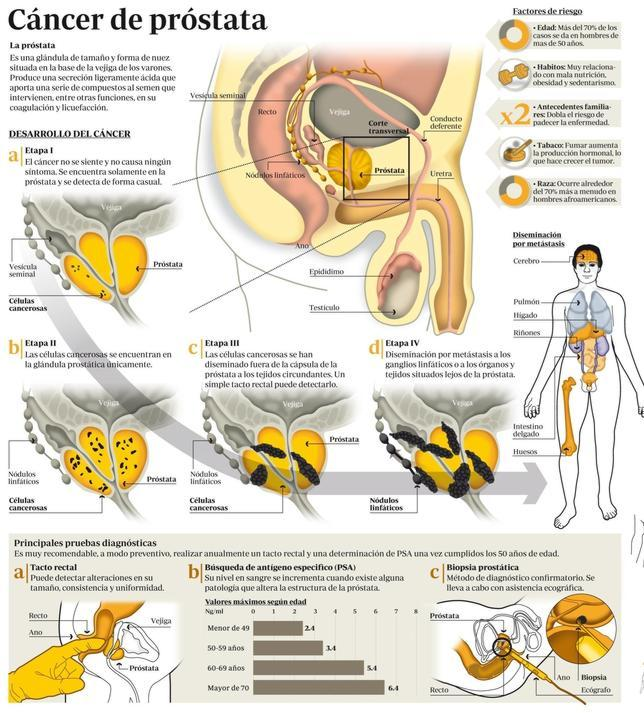 cancer de prostata nivel 4
