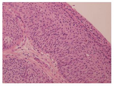 papiloma urotelial tratamiento)