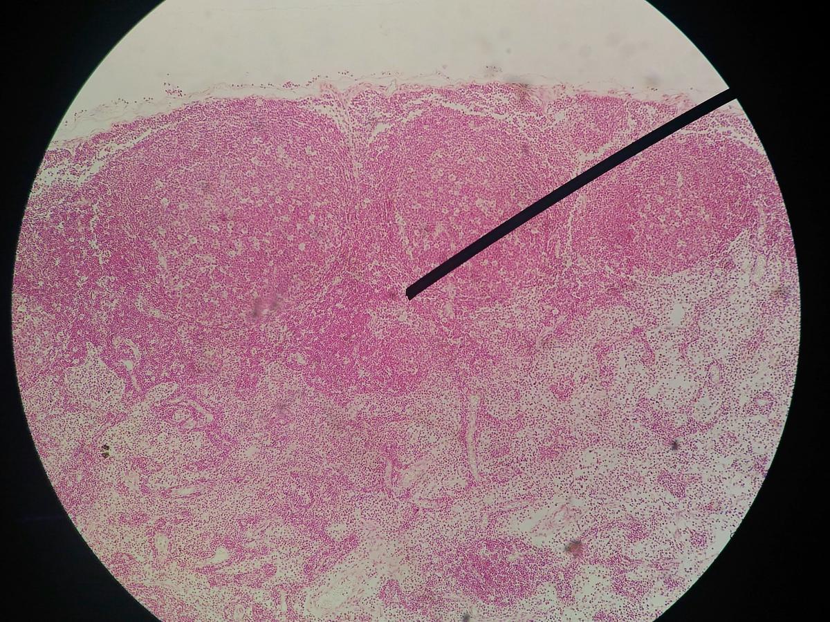 Bruciature per papilloma virus - Bruciature per papilloma virus