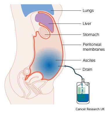 Lung cancer abdominal bloating, Peritoneal cancer fluid build up