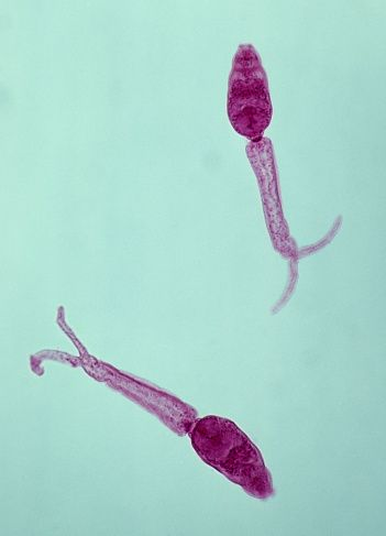paraziți non microscopici)