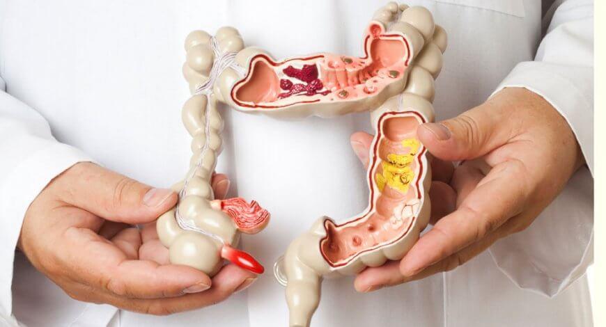dieta crudă giardia vaccino hpv verruche