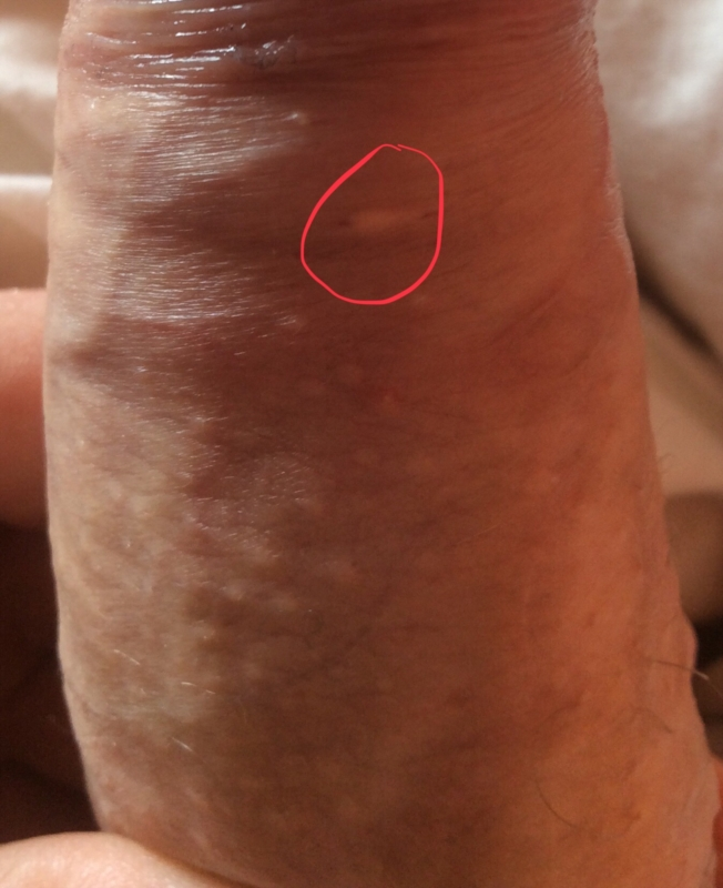 hpv vs genital warts)