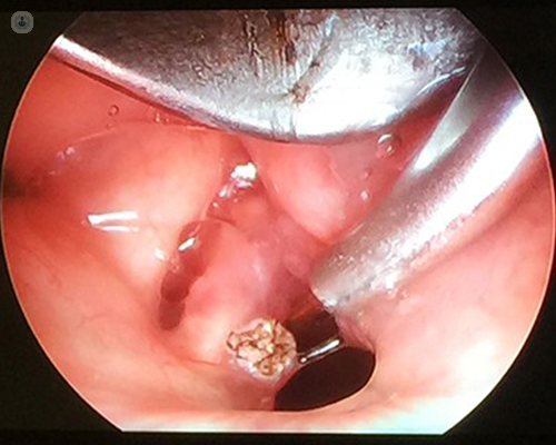 Resection of laryngeal papilloma