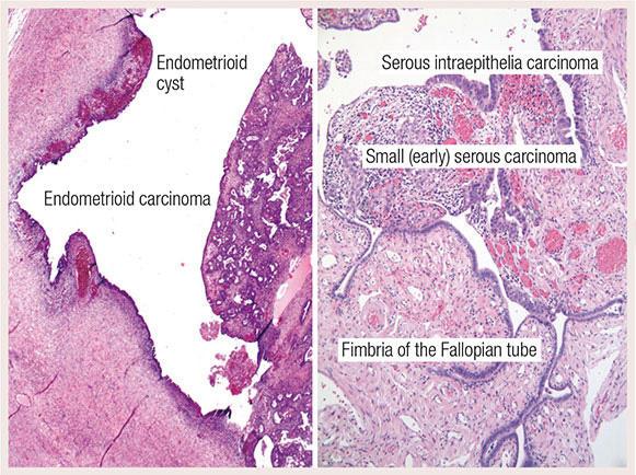 Ovarian cancer x ray, cancer ovarian - Traducere în engleză - exemple în română | Reverso Context