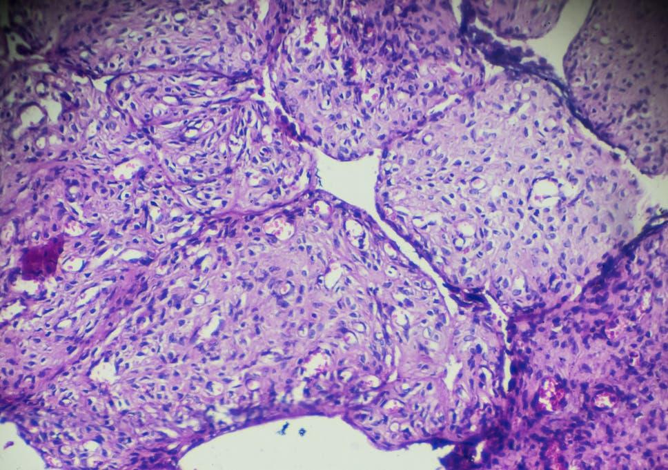 ovarian cancer nice