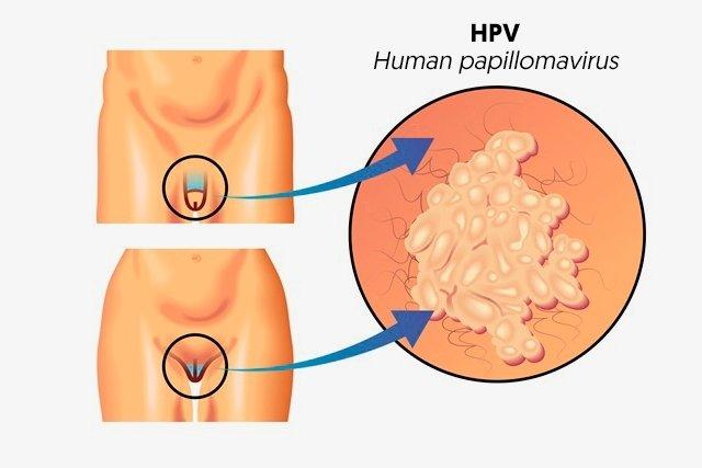 qka eshte human papillomavirus)