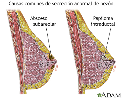 que significa papiloma intraductal