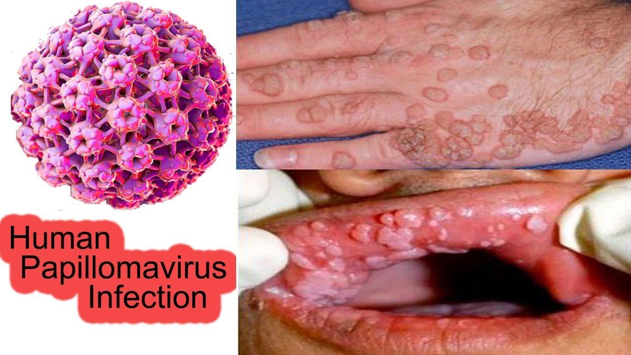papilloma virus chez homme)
