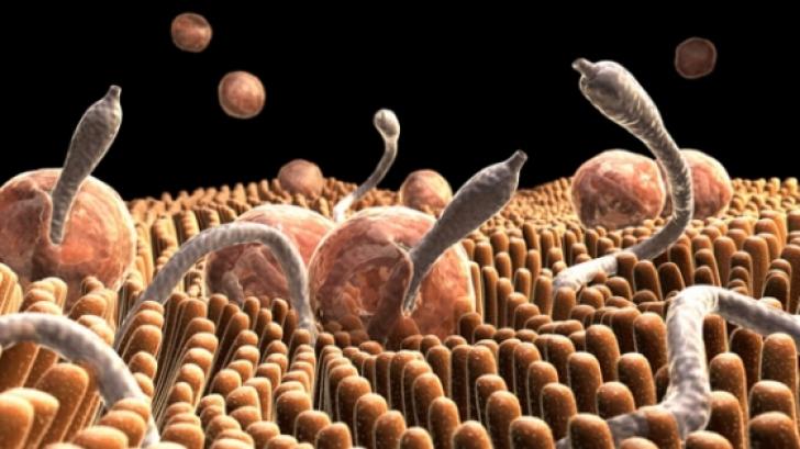 cum să scapi de parazitul teniei