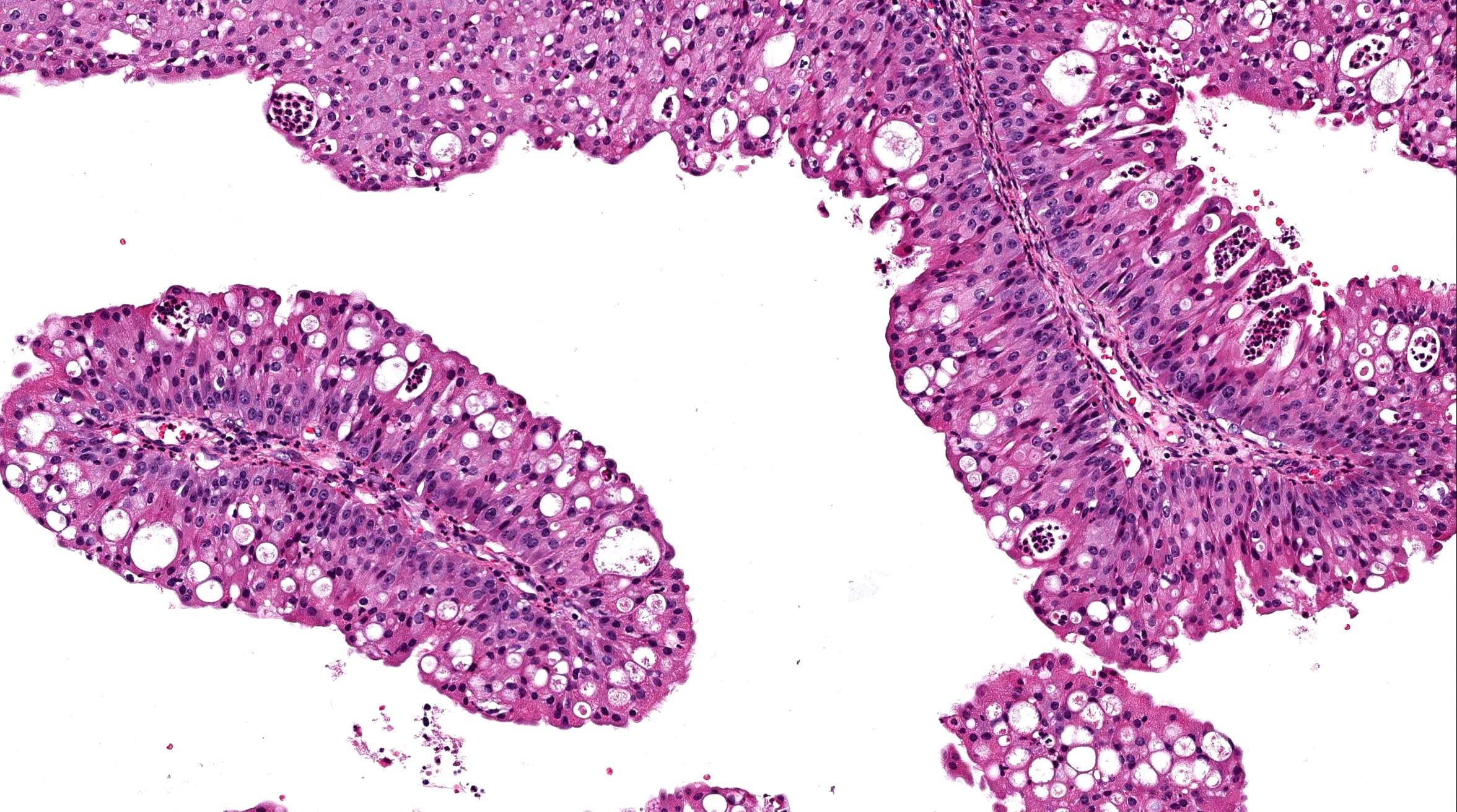 papilloma skin pathology outlines)