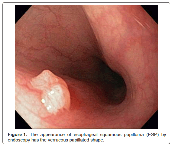 esophagus benign squamous papilloma