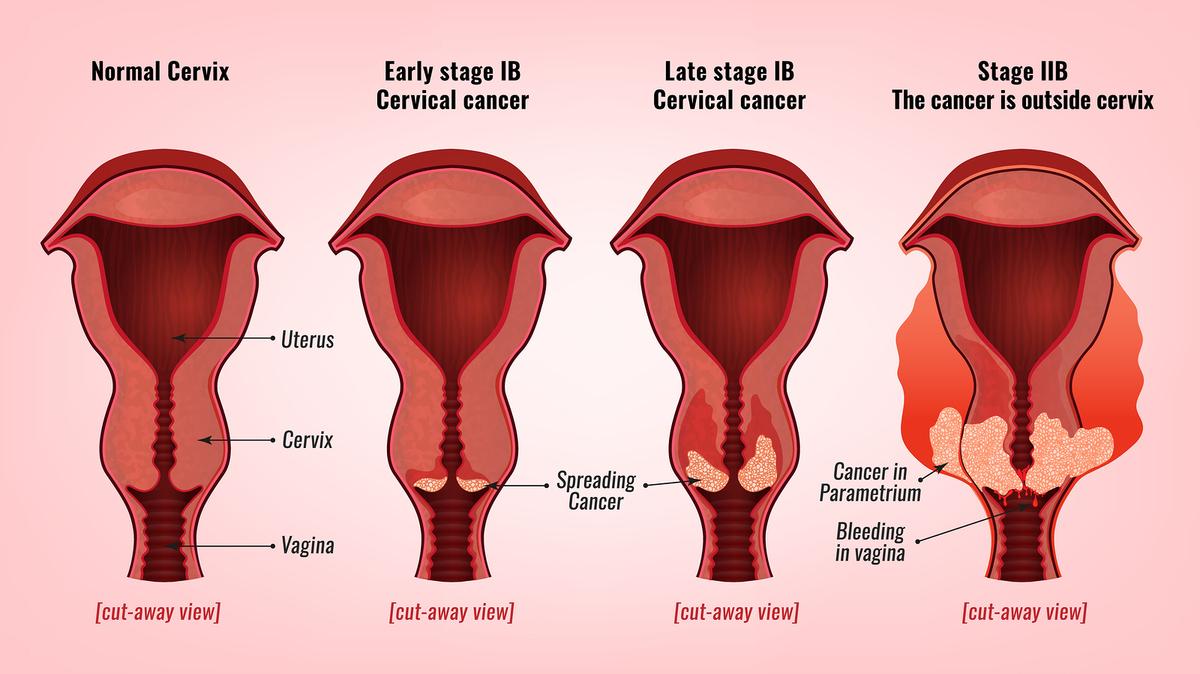 hpv en mujeres como se detecta