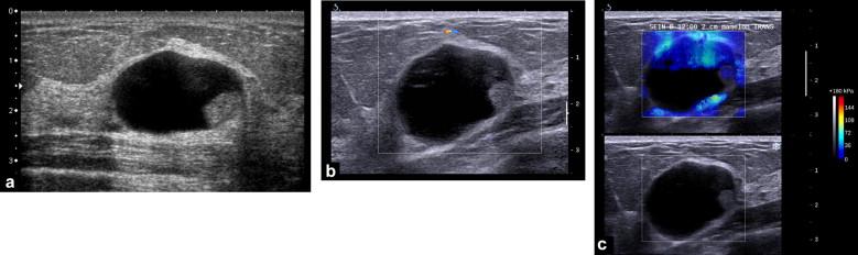 papilloma cystic lesion