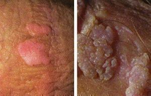 human papillomavirus genital warts treatment