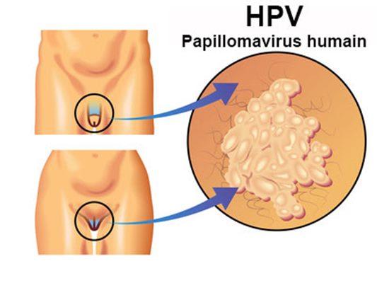 papillomavirus donne des boutons)