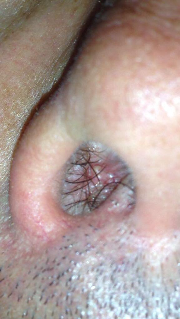 semne de condilom vaginal