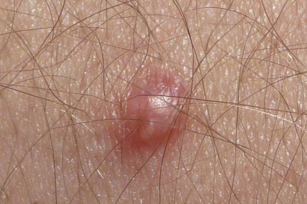human papilloma virus genital)