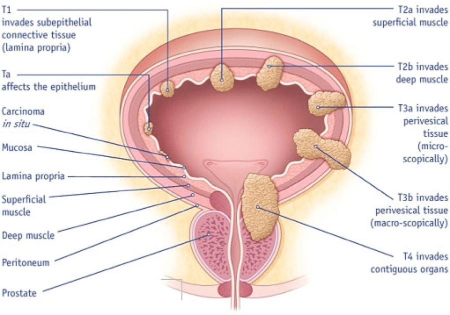 benign cancer of the bladder)