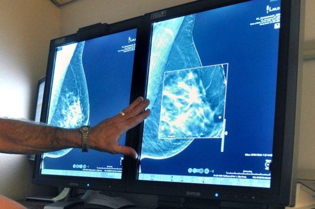 hpv cancer de la gorge)