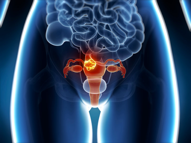 genetic cancer of the womb)