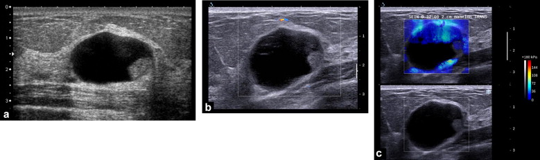 papilloma cystic lesion cancer de piele tratament natural