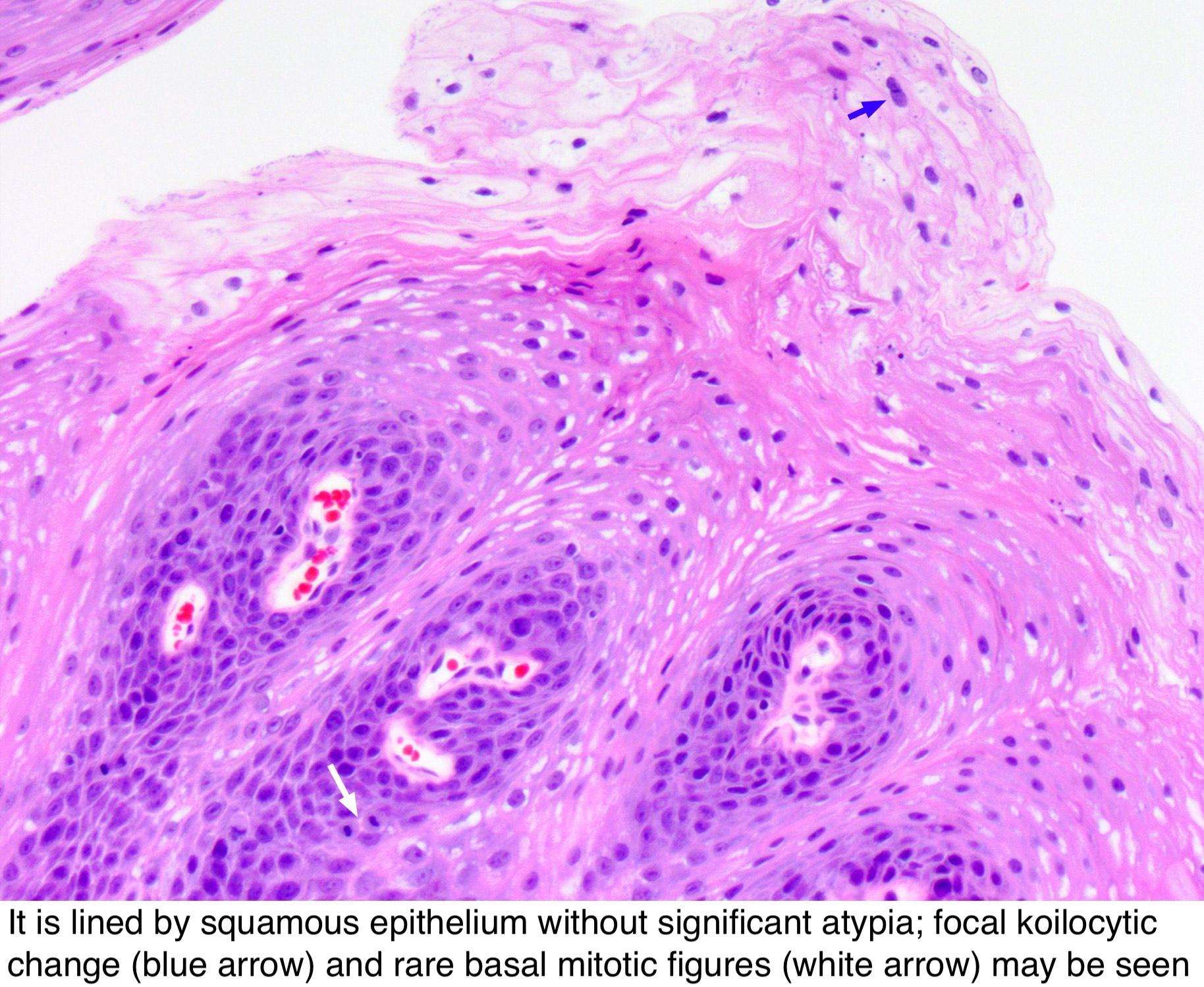 esophagus papilloma histology)