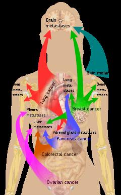rectal cancer kahulugan)