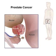 Aggressive cancer prostate prognosis. Întârzierea acută a prostatei