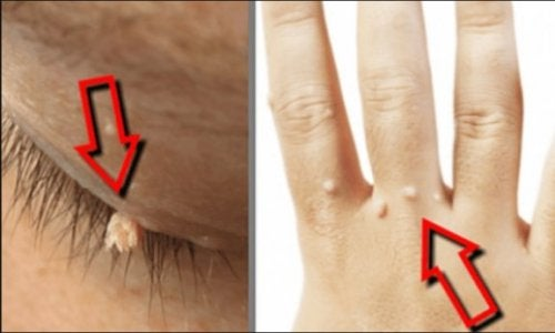 Papiloamele – cauze, tipuri, metode de tratament
