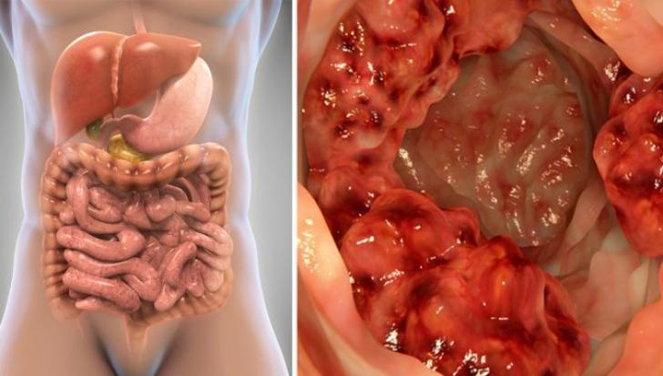 simptome in cancerul de colon cancer de colon con ganglios afectados