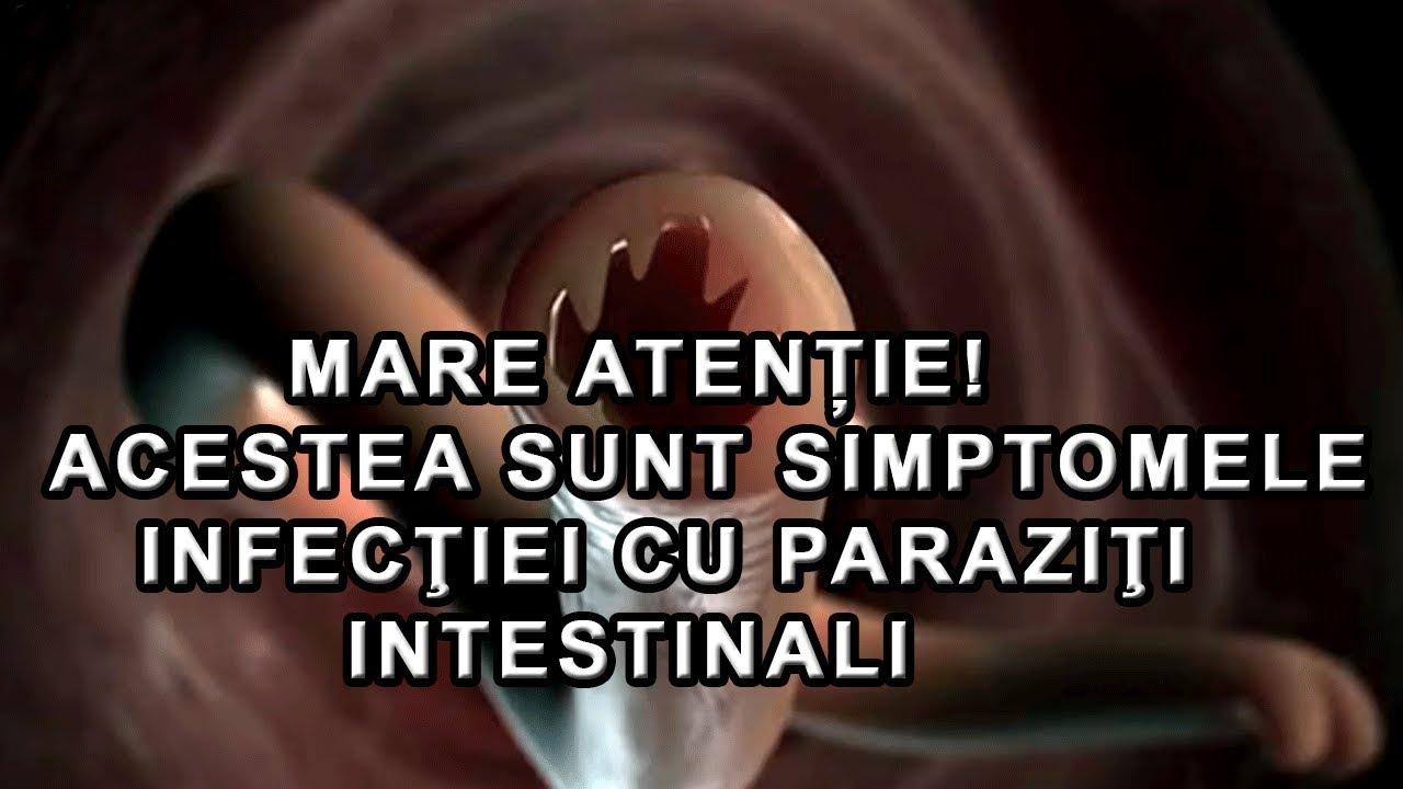 viermi în tratamentul vezicii biliare)