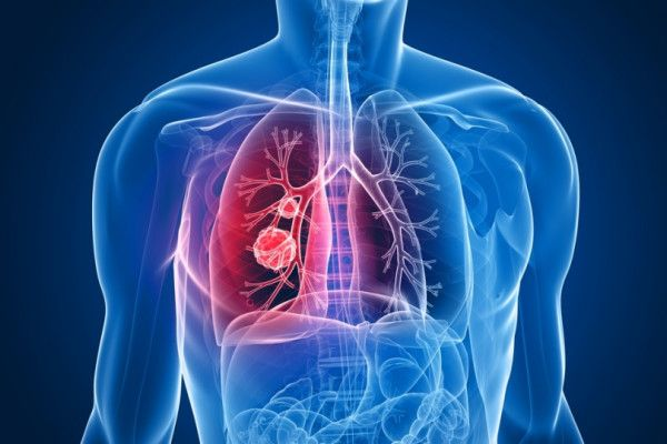 ce este cancerul de plamani respiratory papillomatosis laryngeal