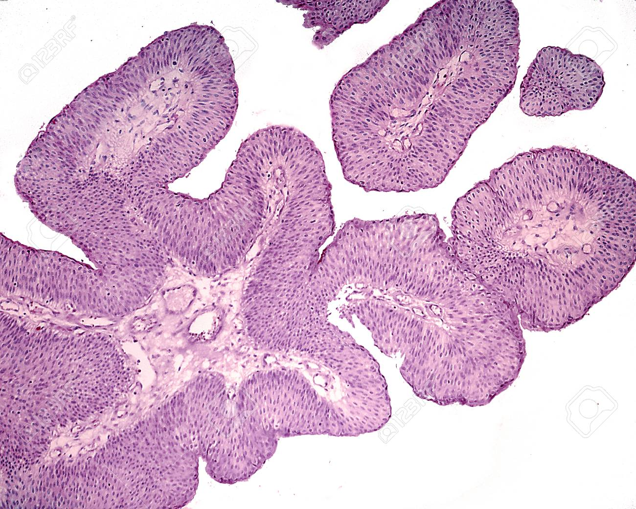 papilloma of the bladder