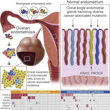 benign cancer and endometriosis)
