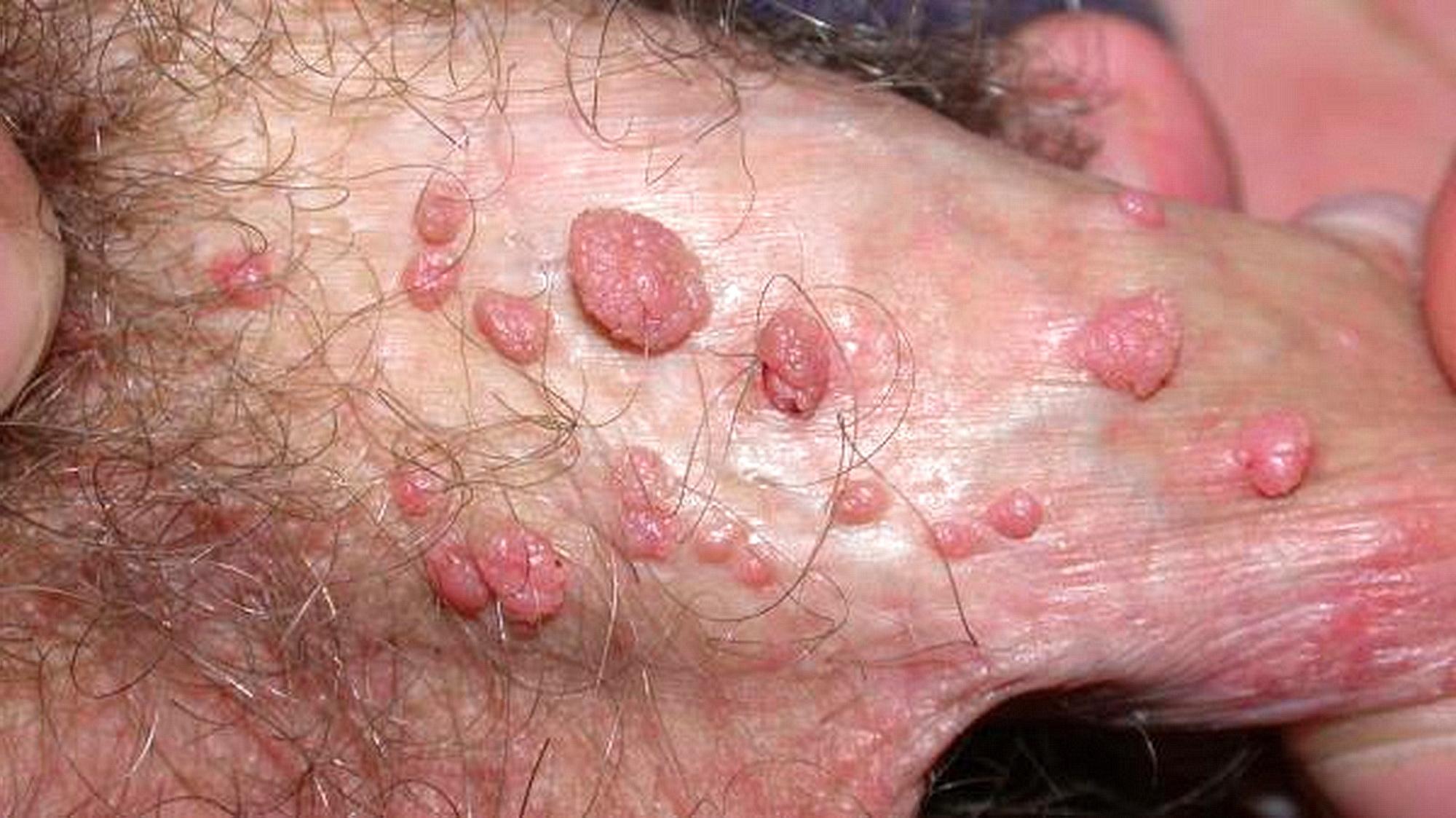 veruca genitala Papilloma virus donne verruche
