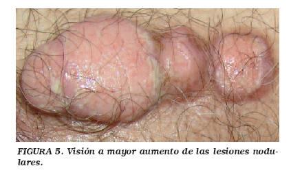 cancer en uretra)