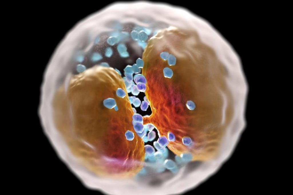 Limfocite scăzute – cauze, simptome și tratament