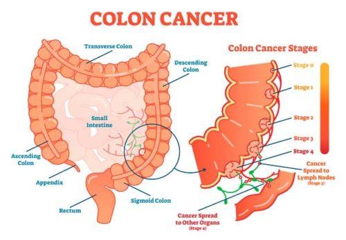 cancer colon laparoscopia
