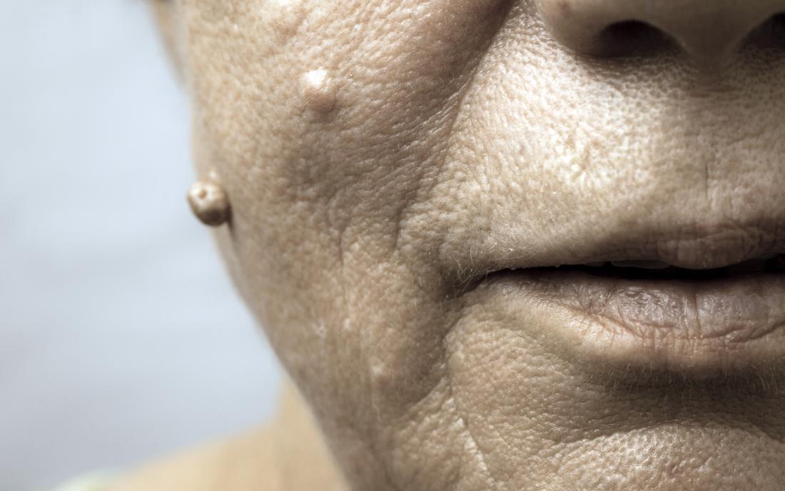 Squamous cell papilloma face, Cell papilloma face