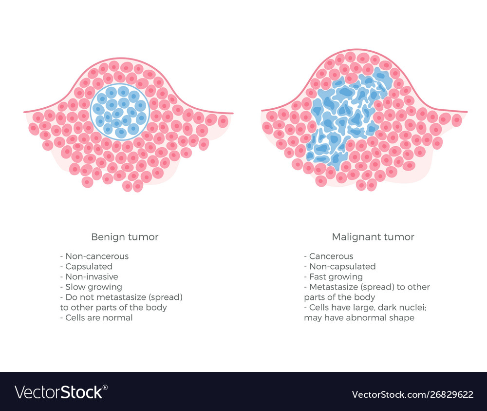 cancer benign neoplasms