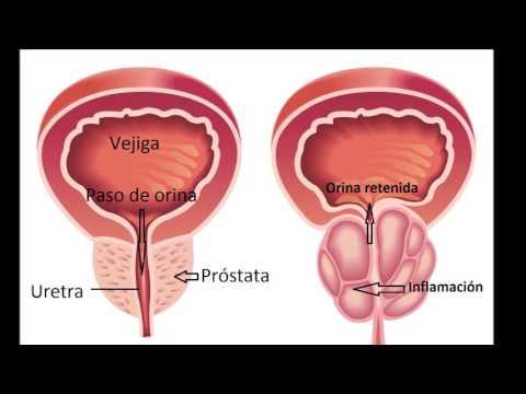 Adenom de prostata: cauze, simptome, complicatii, tratament   Bioclinica
