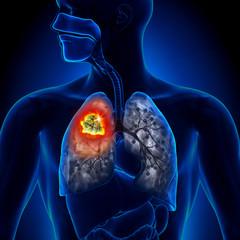 cancer la plamani stadiul 2)